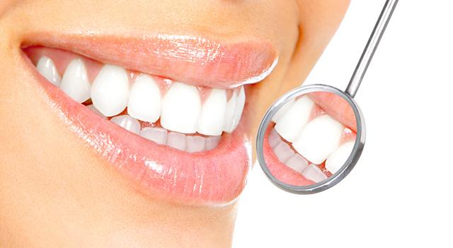 Mund mit Zahnarztspiegel davor